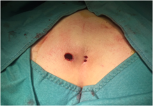درمان دارویی و غیر جراحی کیست مویی یا سینوس پیلونیدال