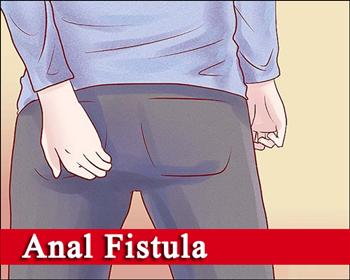 علائم و نشانههای فیستول مقعد، معاینه و تشخیص فیستول
