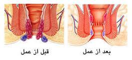مراقبتهای بعد از عمل جراحی هموروئید یا بواسیر