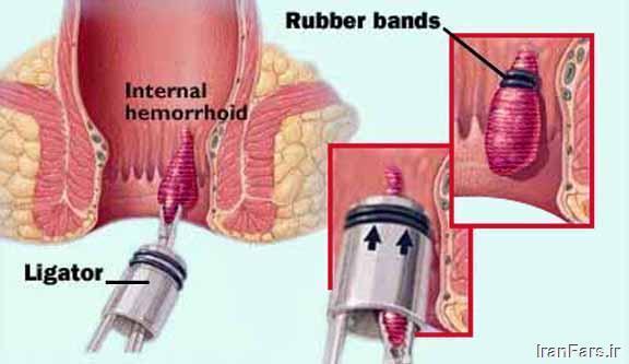 درمان بواسیر رابربند