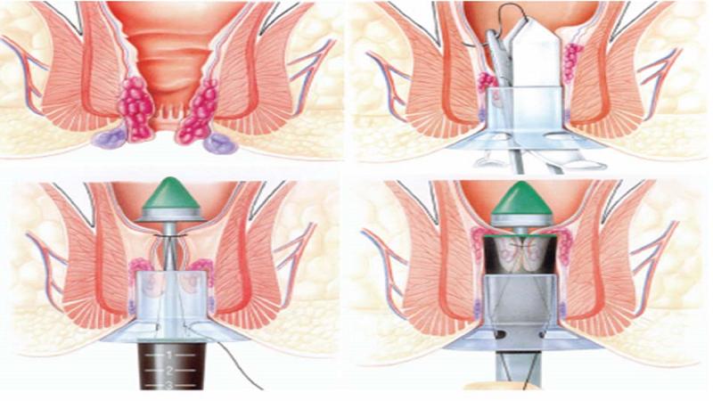 درمان هموروئید یا بواسیر با استاپلر