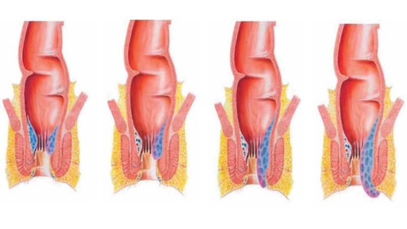 درمان هموروئید یا بواسیر داخلی
