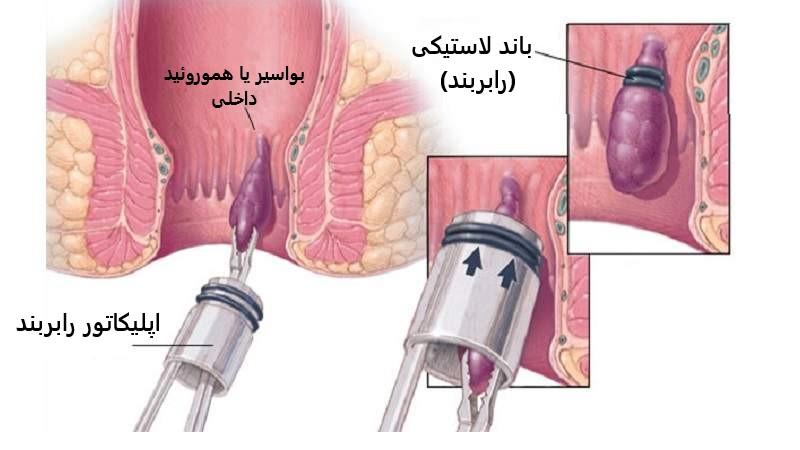 درمان هموروئید یا بواسیر با روش رابربند