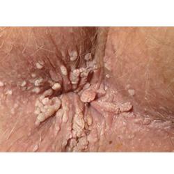 پیشگیری از زگیل مقعد و علائم زگیل مقعد