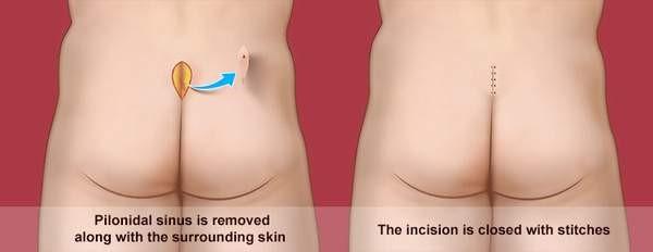 انواع درمان کیست مویی