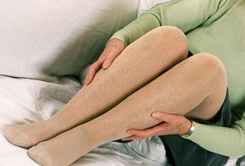 درمان خانگی واریس با جوراب واریس