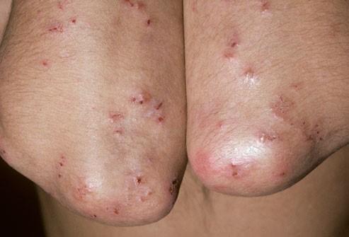 علایم بیماری سلیاک