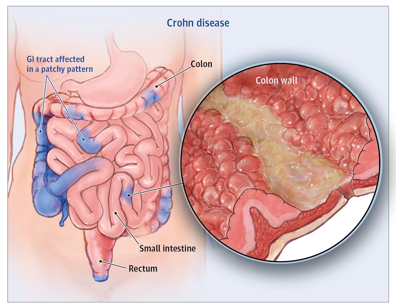 بیماری کرون یکی از بیماریهای التهابی مزمن روده