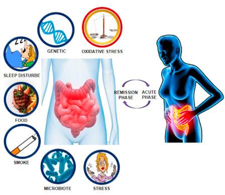 چه عواملی خطر ابتلا به بیماری کرون را افزایش میدهد؟