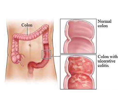 علائم بیماری کولیت اولسراتیو در کودکان و درمان به روش دارویی و جراحی