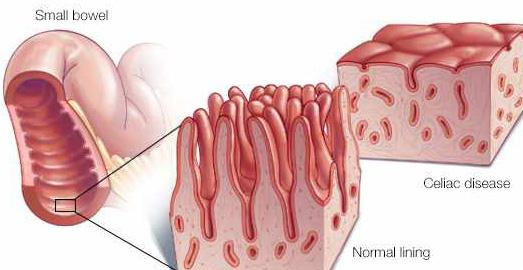 چه عواملی خطر ابتلا به بیماری سلیاک را افزایش میدهد؟