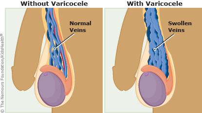 وجود توده از علائم بیماری واریکوسل در مردان