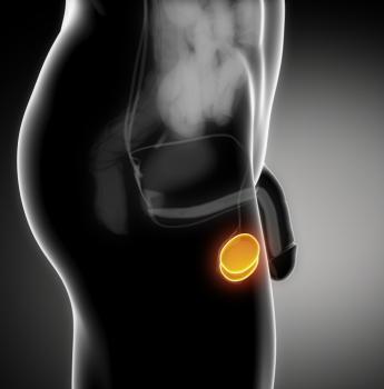 بیماری واریکوسل چیست و تأثیر آن بر ناباروری در مردان
