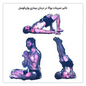 تاثیر تمرینات یوگا در درمان بیماری واریکوسل