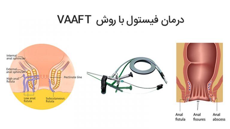 درمان فیستول با روش VAAFT