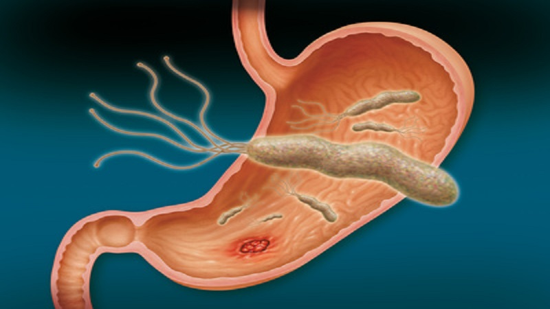 تشخیص هلیکوباکتر معده و روش های درمان این بیماری دردناک گوارشی