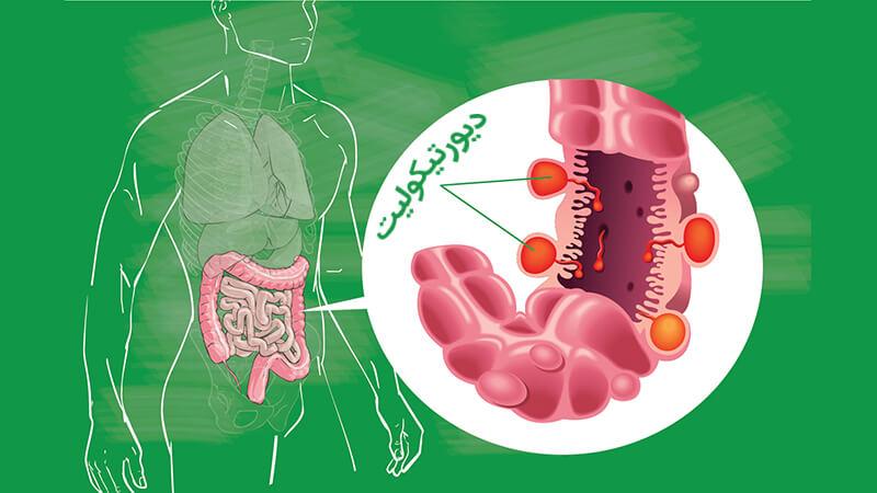 علائم تشخیص دیورتیکولیت و عوارض جانبی این بیماری بر کولون سیگموئید