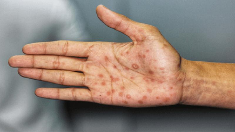 عوارض و مراحل مختلف بیماری سیفلیس