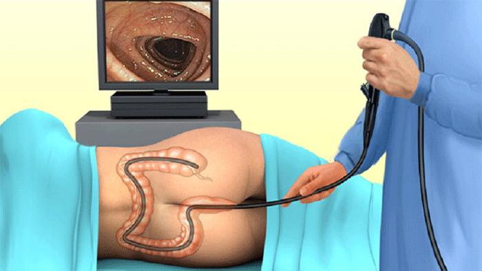کولونوسکوپی برای تشخیص پولیپ روده بزرگ
