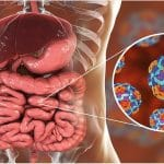 گاستروانتریت ویروسی یا آنفولانزای معده، پیشگیری و روش های درمان این عفونت روده ای