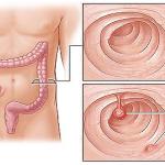 پولیپ روده بزرگ و ایجاد سرطان کلورکتال و روش های درمانی