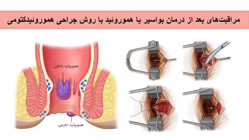 [عکس: Hemorrhoidectomy.jpg]