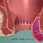 درمان بواسیر (هموروئید) خارجی با لیزر و جراحی