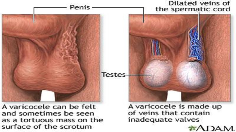 واریکوسل و علل ایجاد این بیماری در مردان