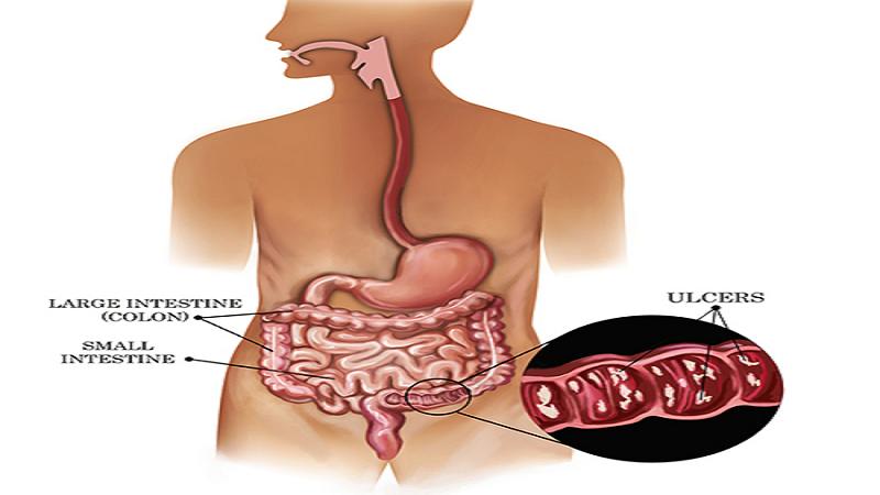 علائم بیماری کولیت اولسراتیو در دوران بارداری