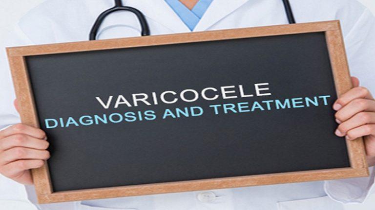 روش های درمان واریکوسل