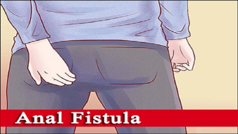 علایم و نشانههای فیستول مقعد