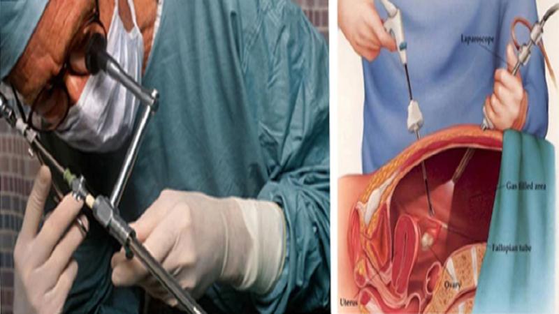 درمان بواسیر، فیستول، شقاق، کیست مویی توسط پزشک متخصص با لیزر