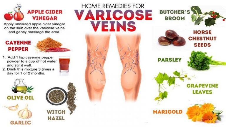 درمان های گیاهی و طب سنتی واریس