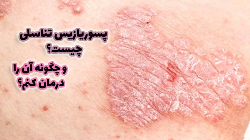 عکس پسوریازیس تناسلی ایران کلینیک